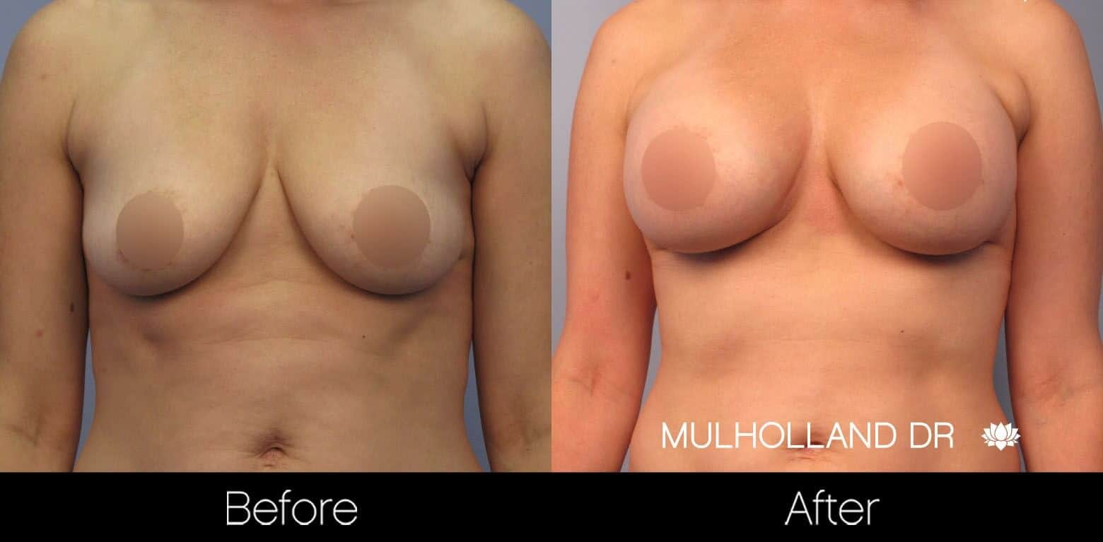 Breast Augmentation - Before and After Gallery – Photo 46