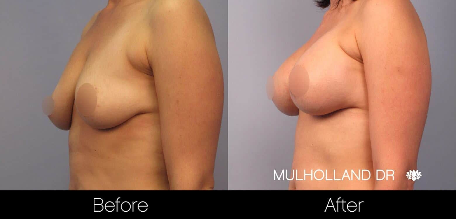Breast Augmentation - Before and After Gallery – Photo 47