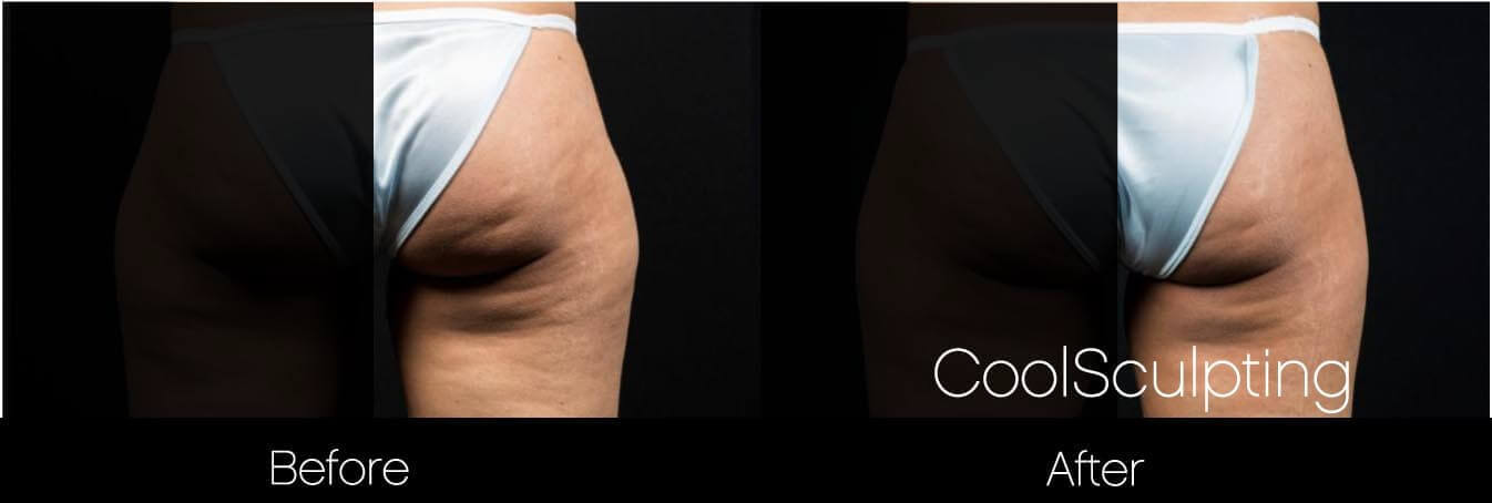 CoolSculpting - Before and After Gallery – Photo 47