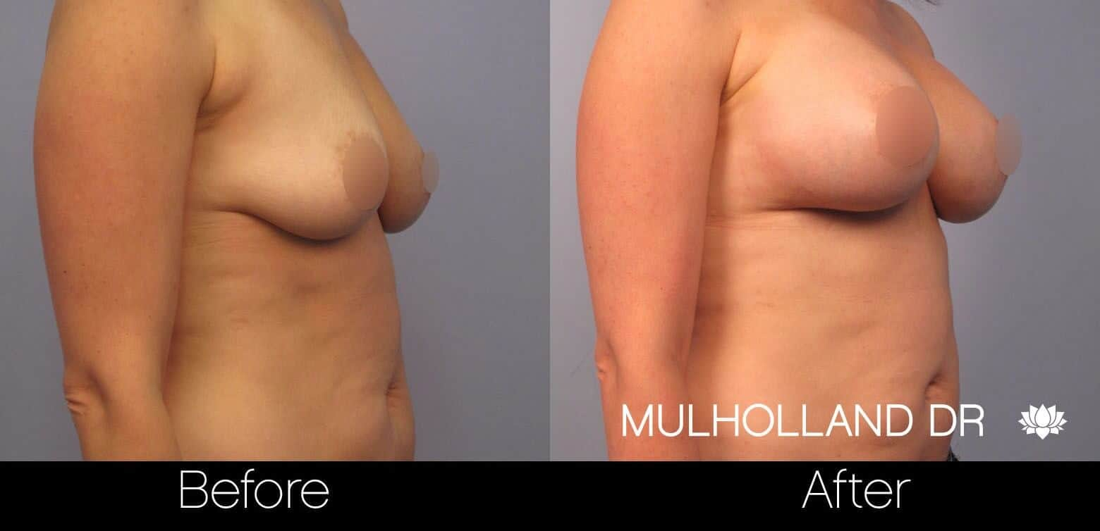Breast Augmentation - Before and After Gallery – Photo 48