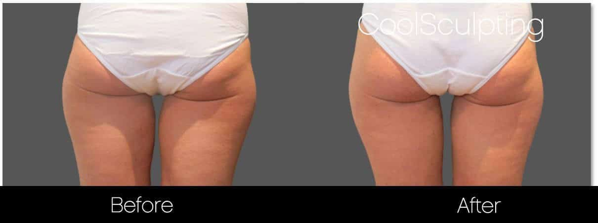CoolSculpting - Before and After Gallery – Photo 49