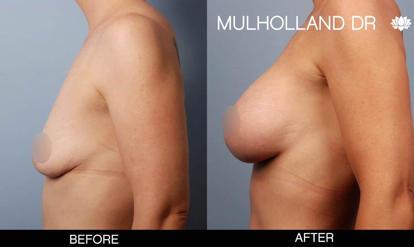 Breast Augmentation - Before and After Gallery – Photo 49