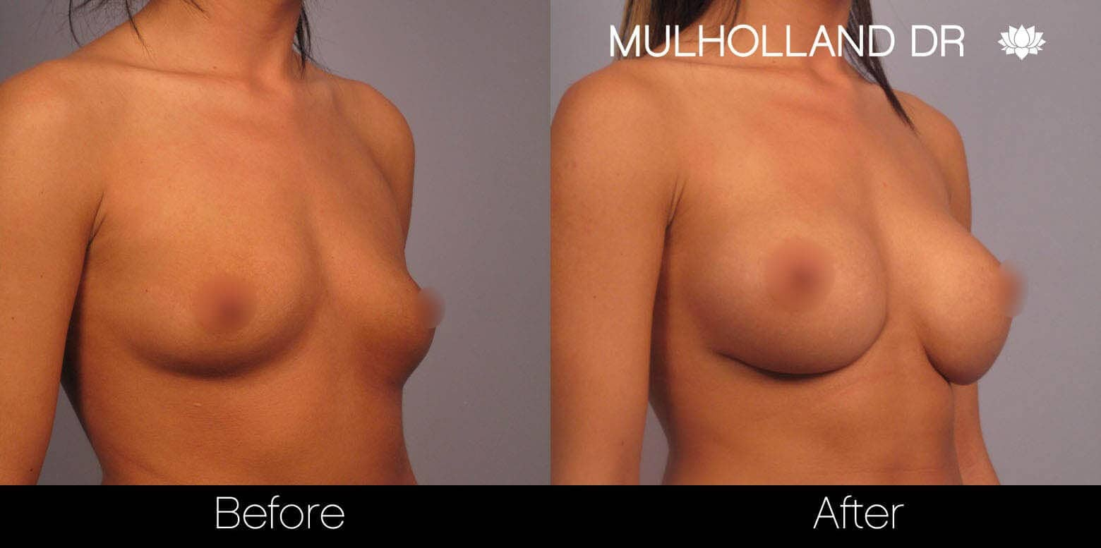 Breast Augmentation - Before and After Gallery – Photo 4