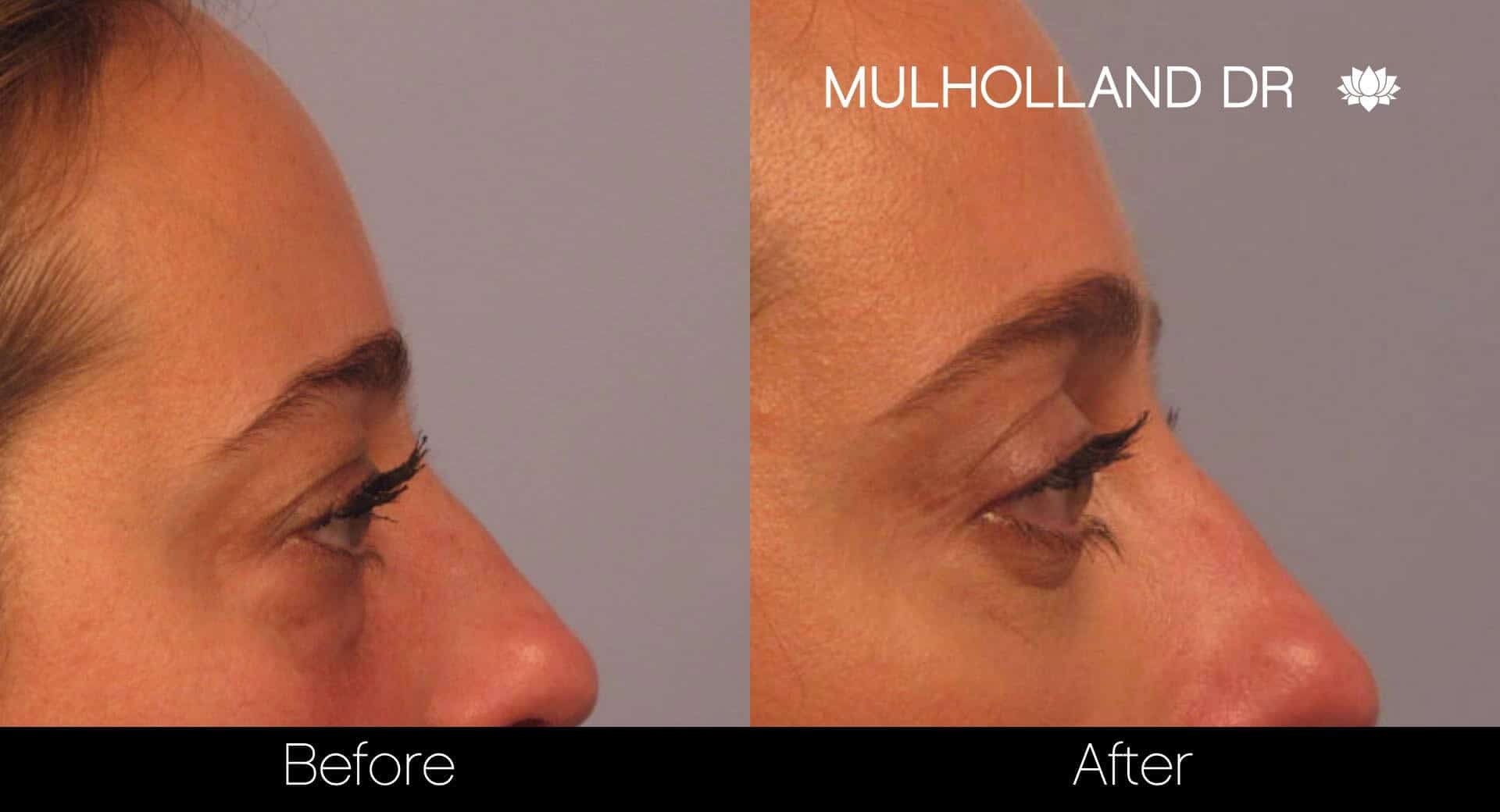 Blepharoplasty - Before and After Gallery – Photo 4