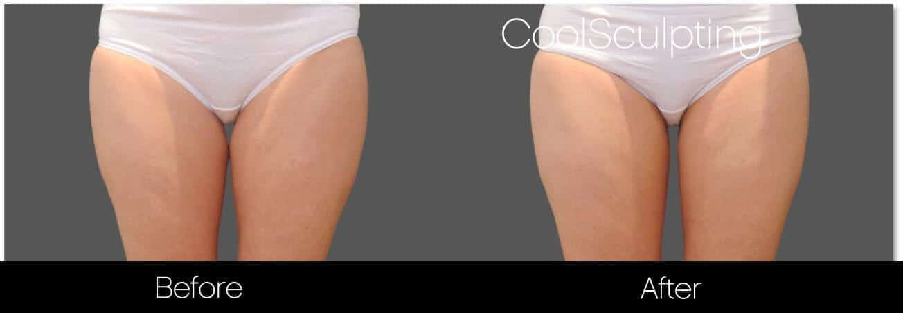 CoolSculpting - Before and After Gallery – Photo 50