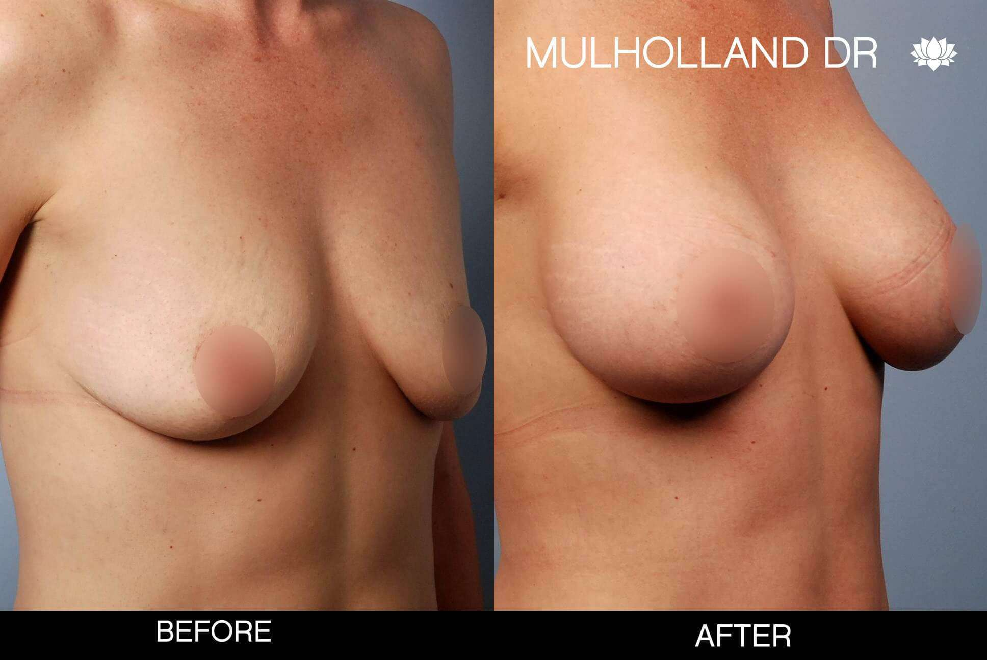 Breast Augmentation - Before and After Gallery – Photo 50