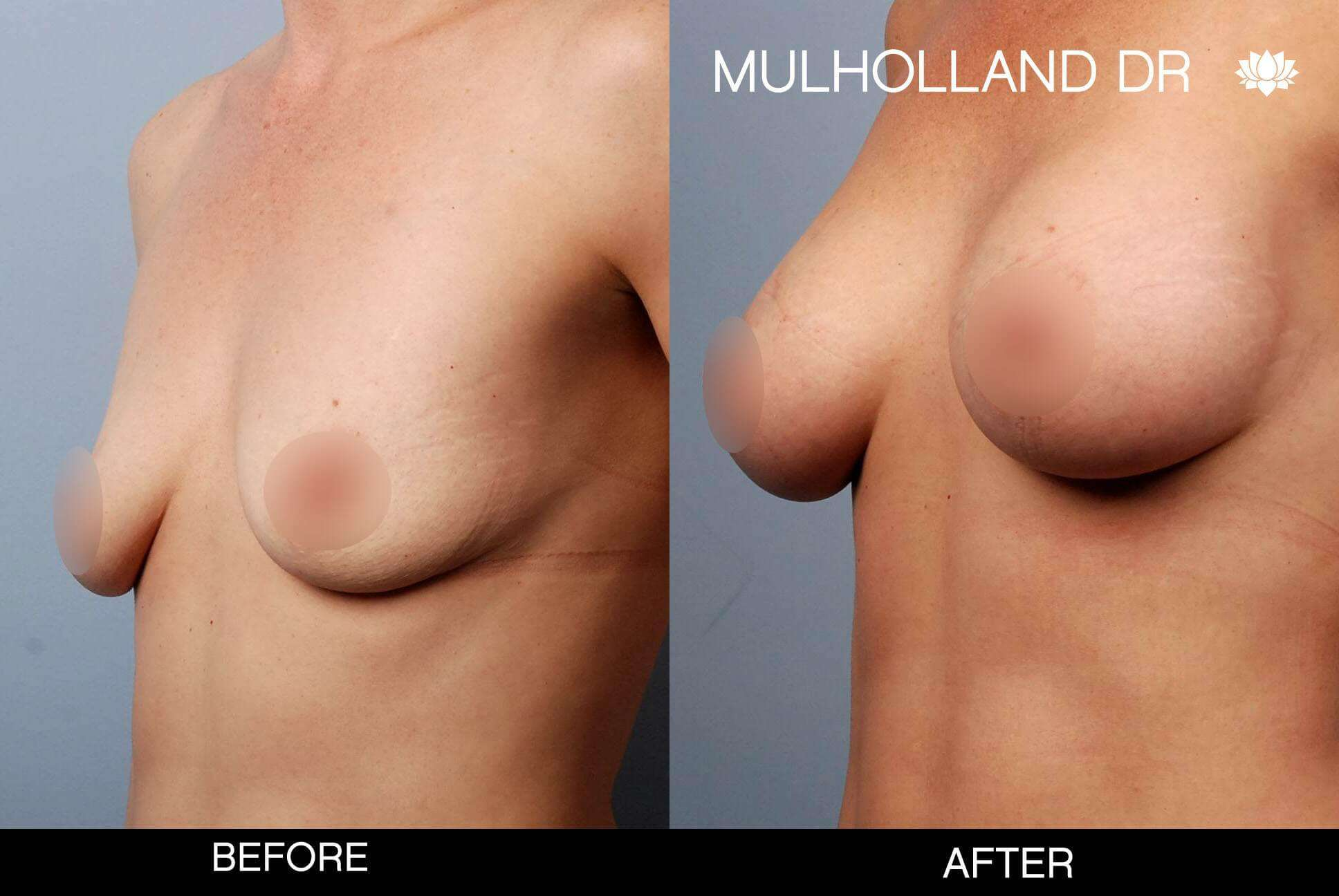 Breast Augmentation - Before and After Gallery – Photo 51