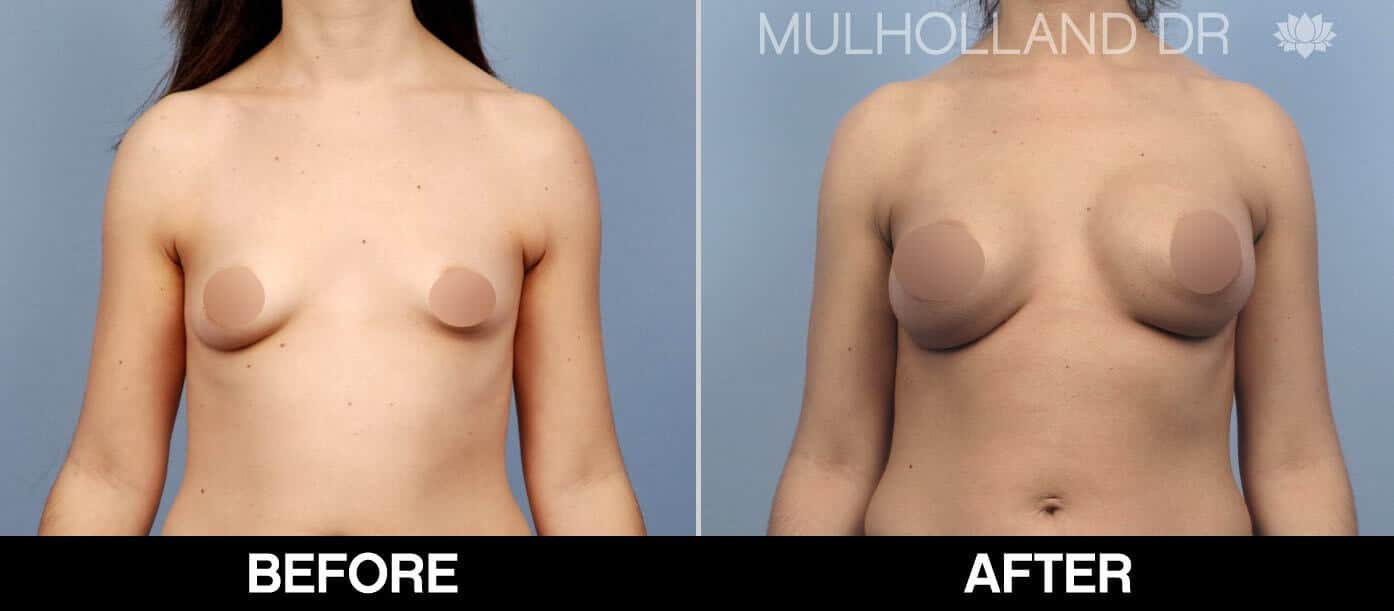 Breast Augmentation - Before and After Gallery – Photo 53
