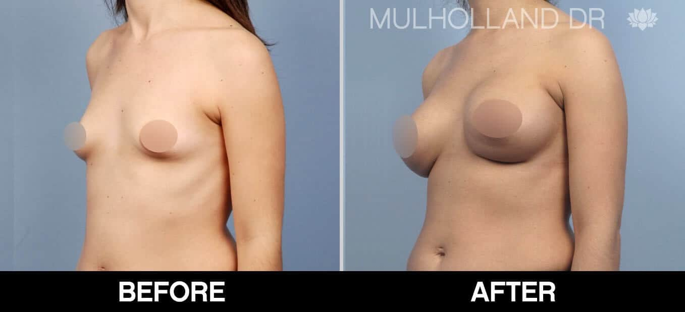 Breast Augmentation - Before and After Gallery – Photo 54