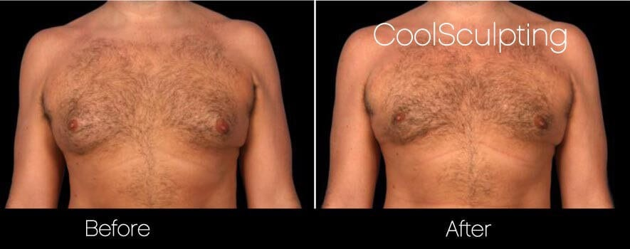 CoolSculpting - Before and After Gallery – Photo 55