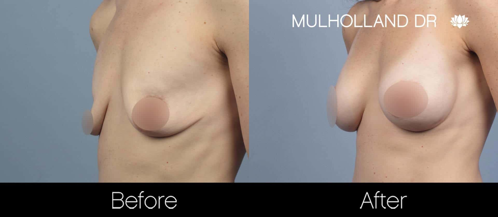 Breast Augmentation - Before and After Gallery – Photo 55