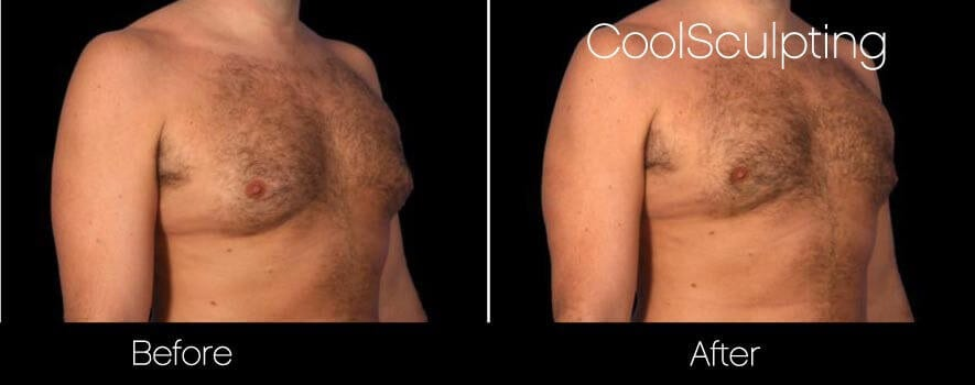 CoolSculpting - Before and After Gallery – Photo 56