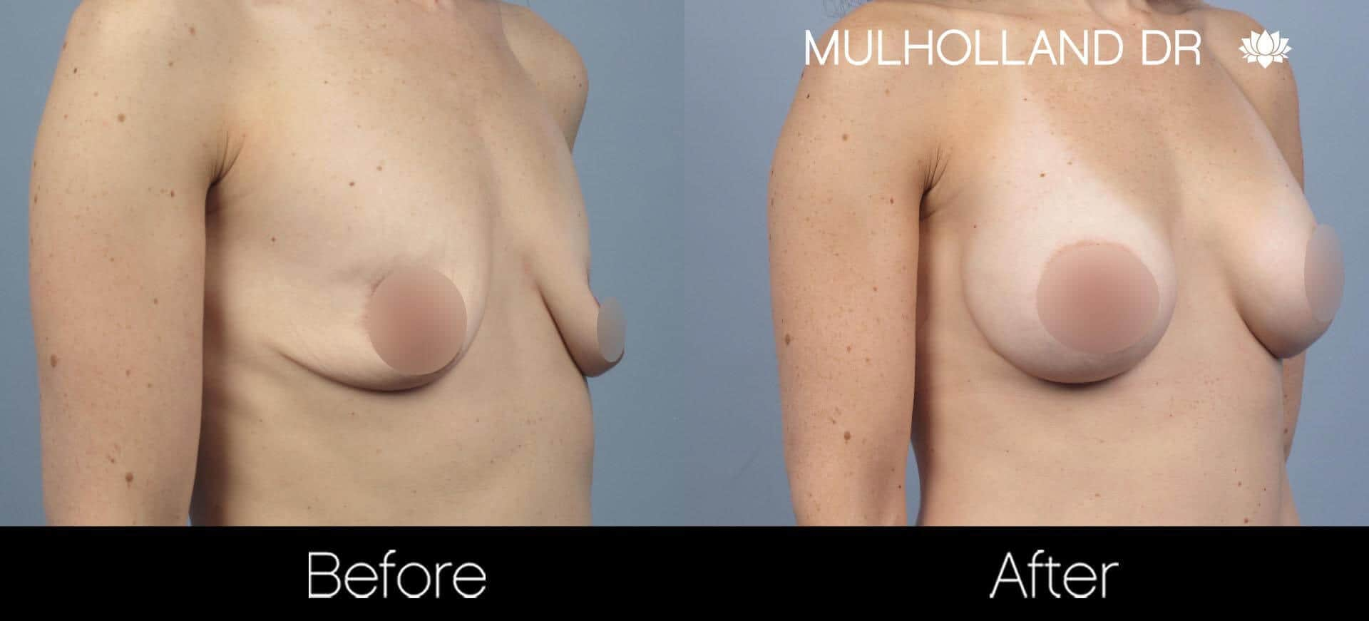 Breast Augmentation - Before and After Gallery – Photo 56