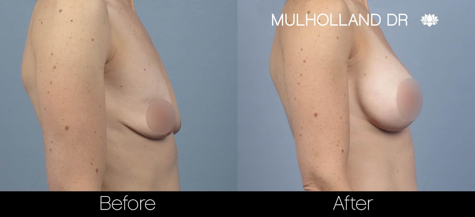 Breast Augmentation - Before and After Gallery – Photo 57