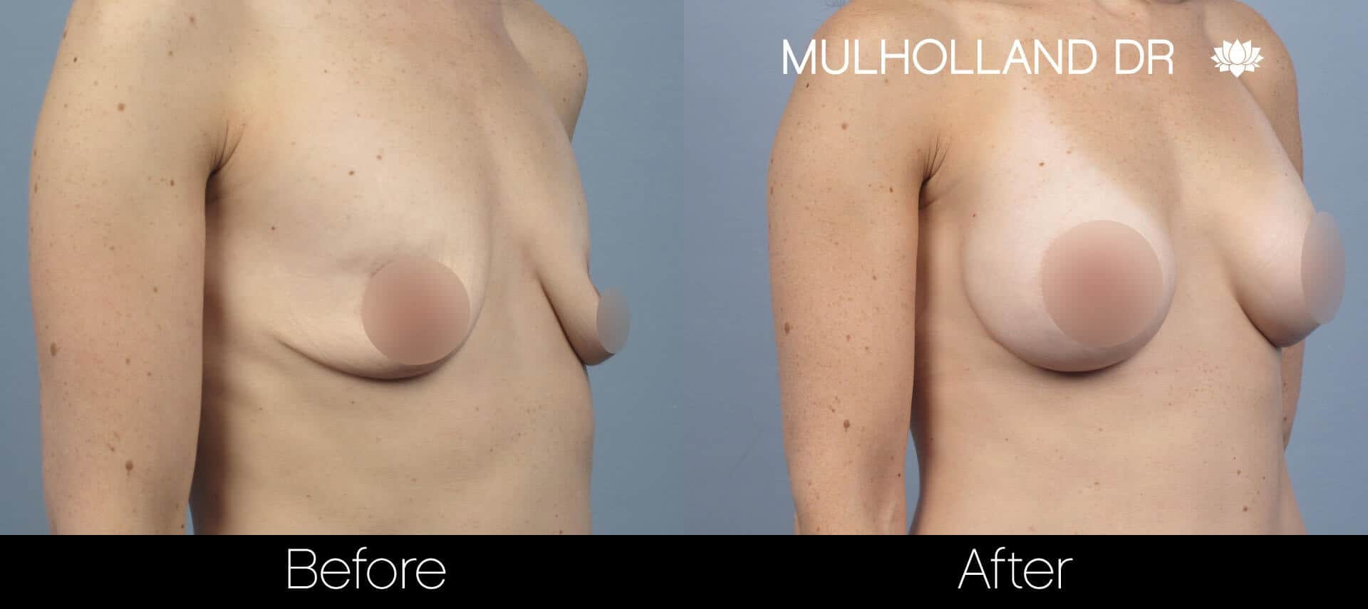 Breast Augmentation - Before and After Gallery – Photo 58
