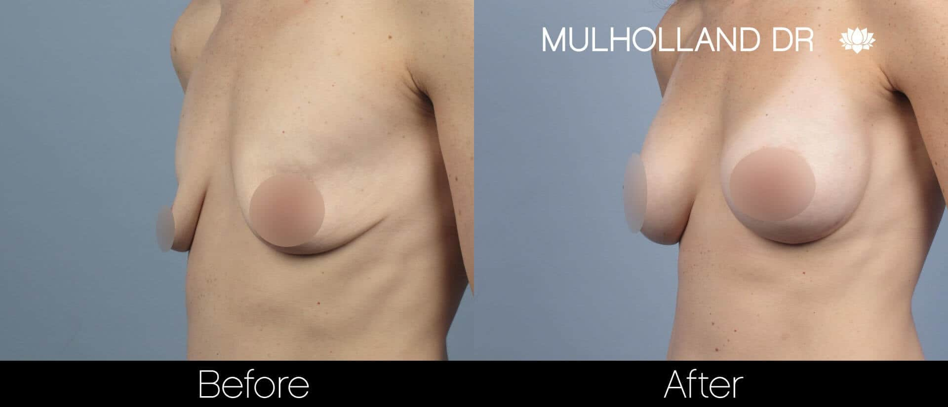 Breast Augmentation - Before and After Gallery – Photo 59