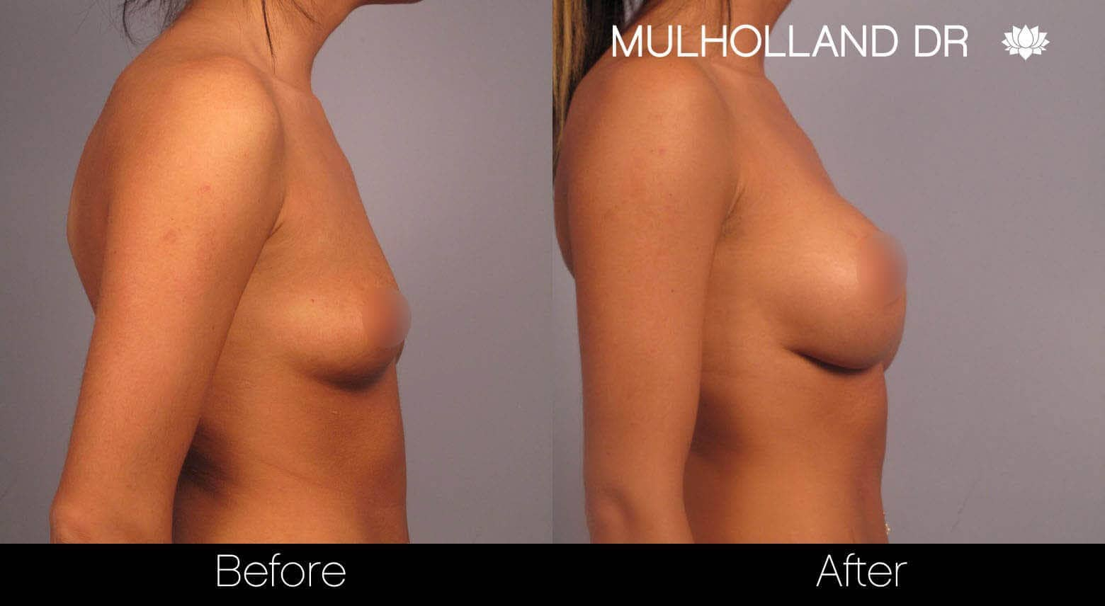 Breast Augmentation - Before and After Gallery – Photo 5