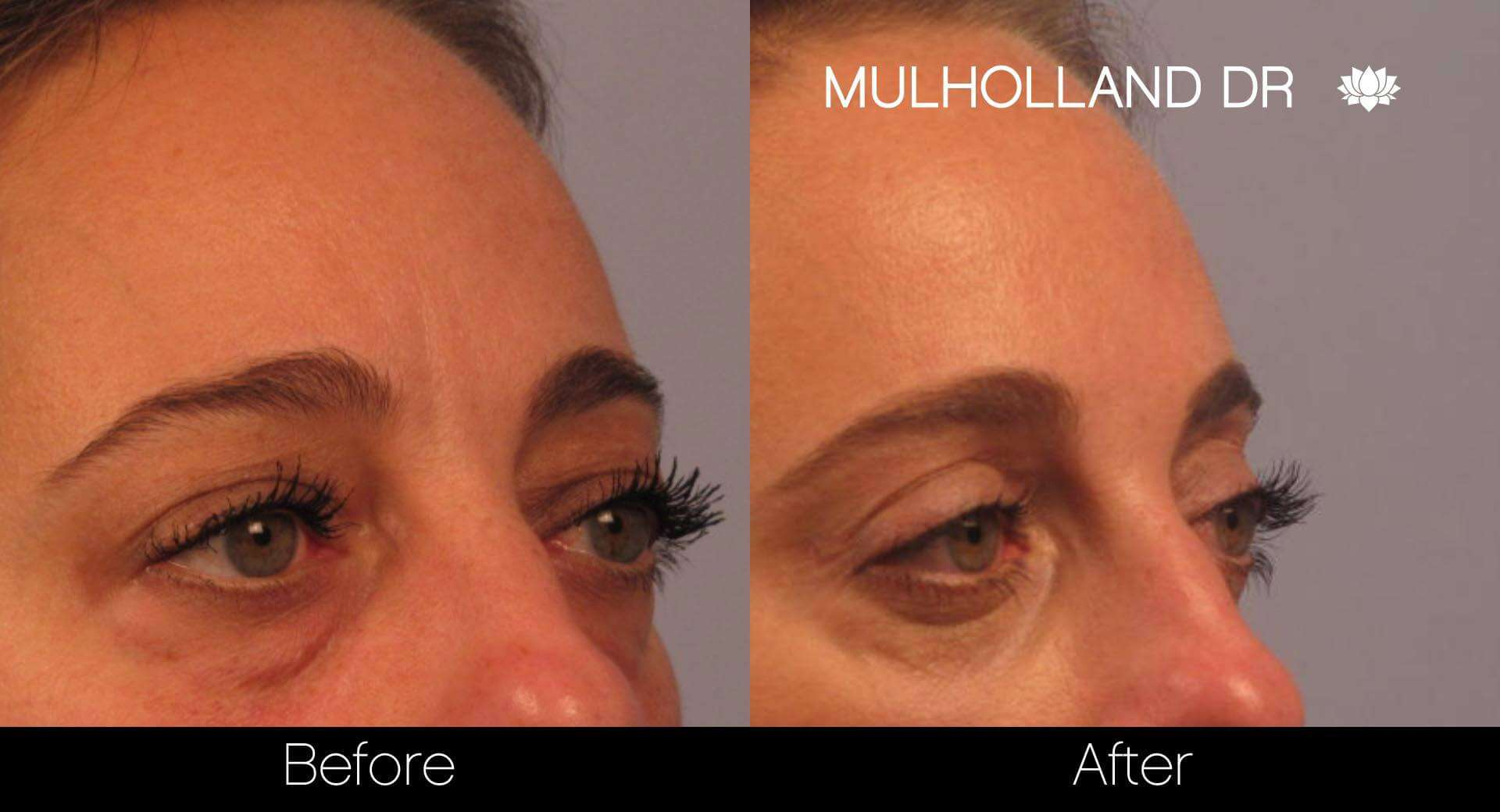 Blepharoplasty - Before and After Gallery – Photo 5