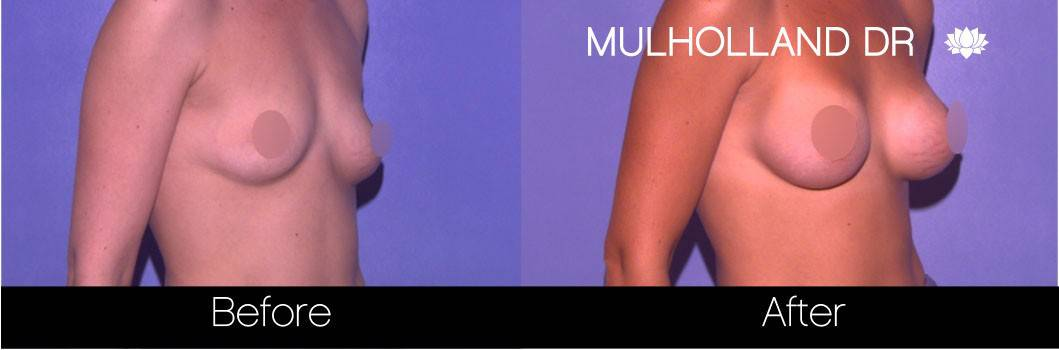 Breast Augmentation - Before and After Gallery – Photo 63