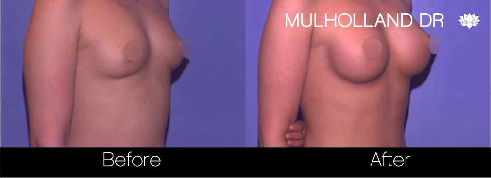 Breast Augmentation - Before and After Gallery – Photo 68