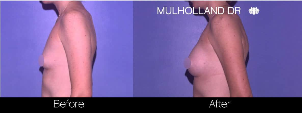 Breast Augmentation - Before and After Gallery – Photo 76