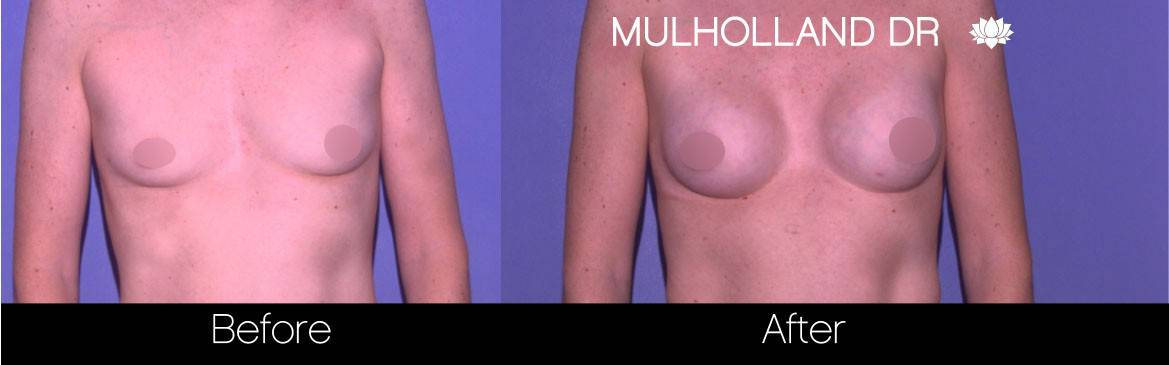 Breast Augmentation - Before and After Gallery – Photo 78