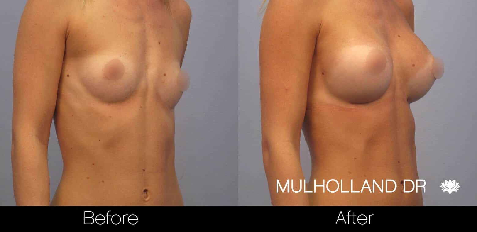 Breast Augmentation - Before and After Gallery – Photo 7