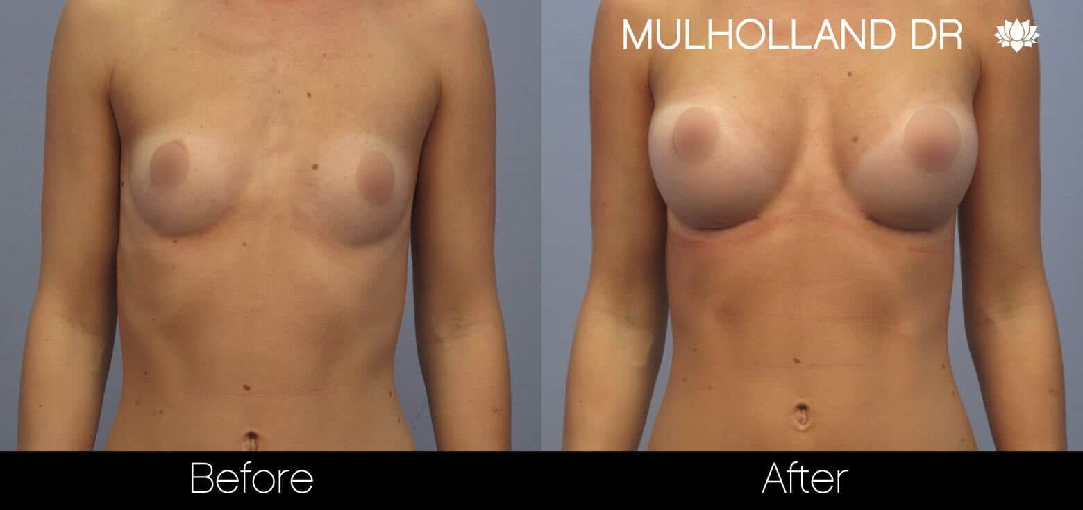 Breast Augmentation - Before and After Gallery – Photo 8