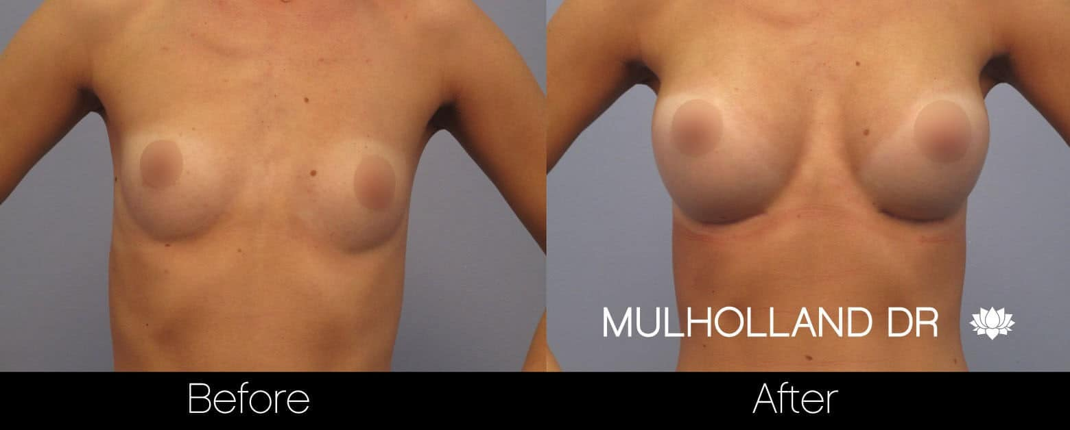 Breast Augmentation - Before and After Gallery – Photo 9