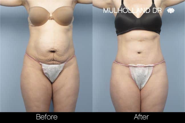 Mini Tummy Tuck - Before and After Gallery – Photo 15
