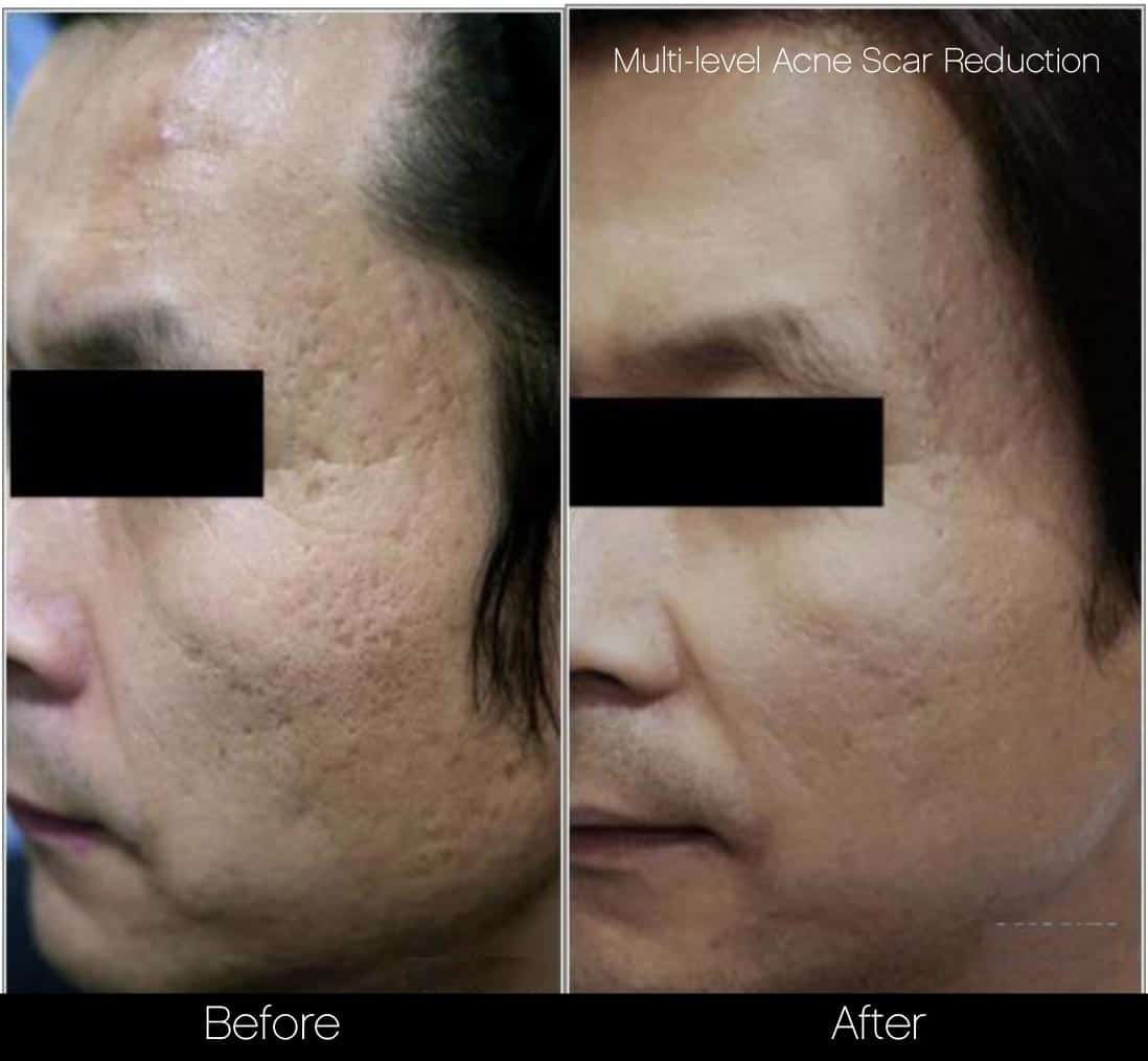 Acne Scar Treatments - Before and After Gallery – Photo 12