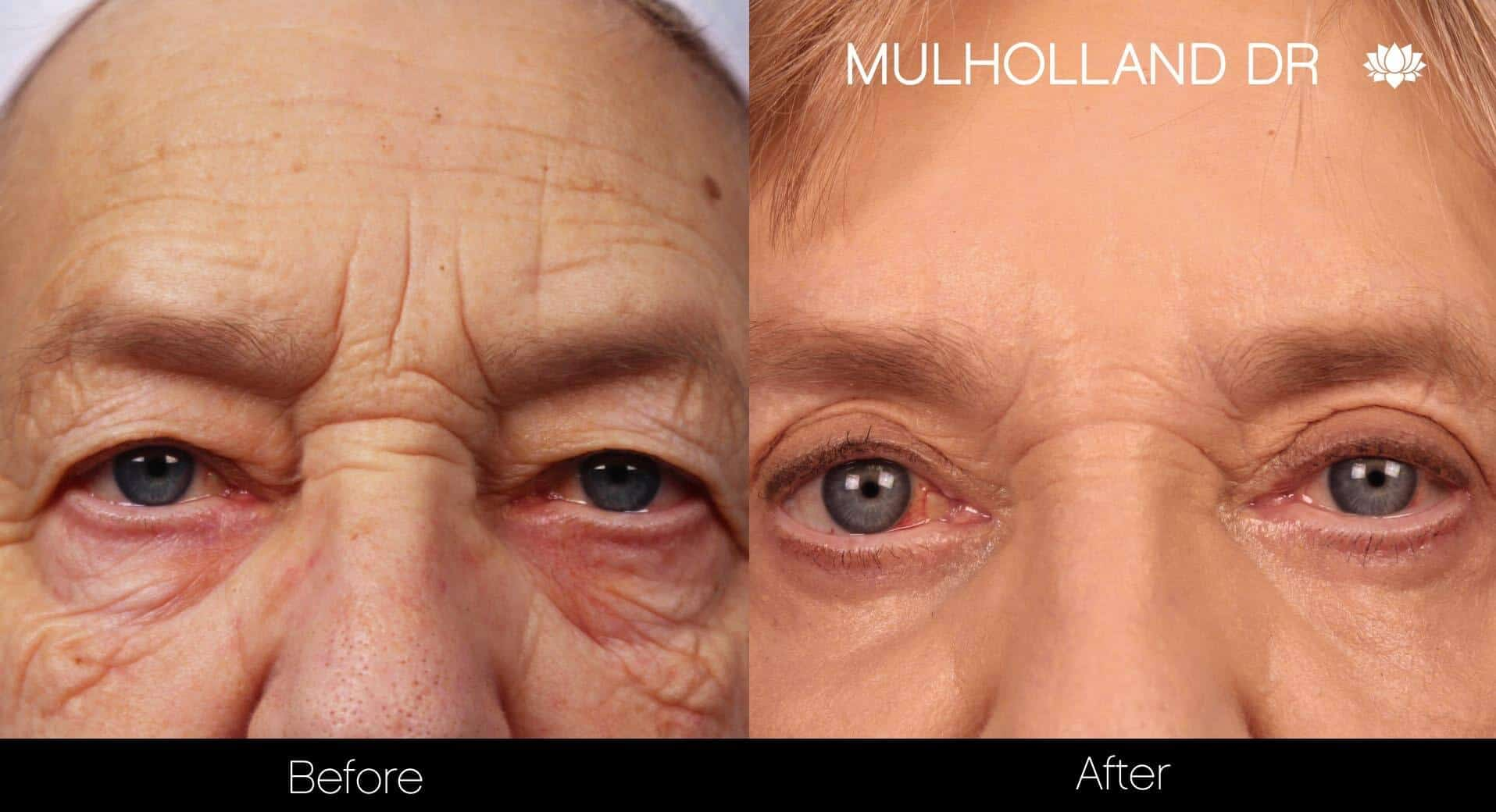 Fractional Erbium Laser - Before and After Gallery – Photo 26
