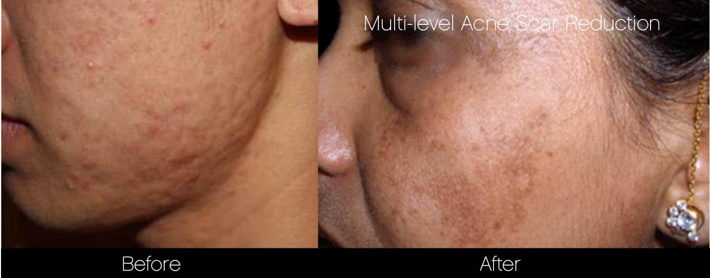 Acne Scar Treatments - Before and After Gallery – Photo 14