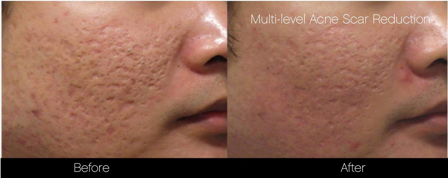 Acne Scar Treatments - Before and After Gallery – Photo 15