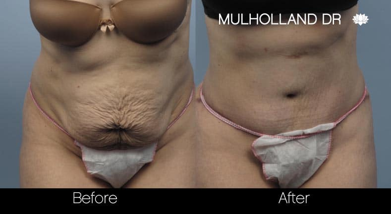 Mini Tummy Tuck - Before and After Gallery – Photo 16
