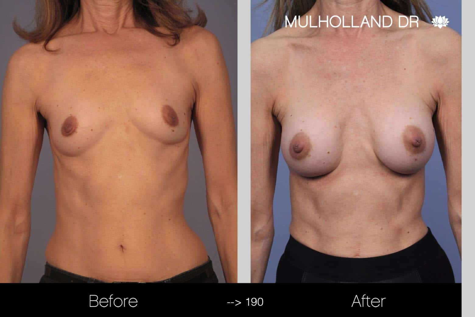 Fat Grafting Breast Augmentation - Before and After Gallery – Photo 16