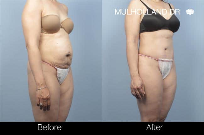 Mini Tummy Tuck - Before and After Gallery – Photo 17