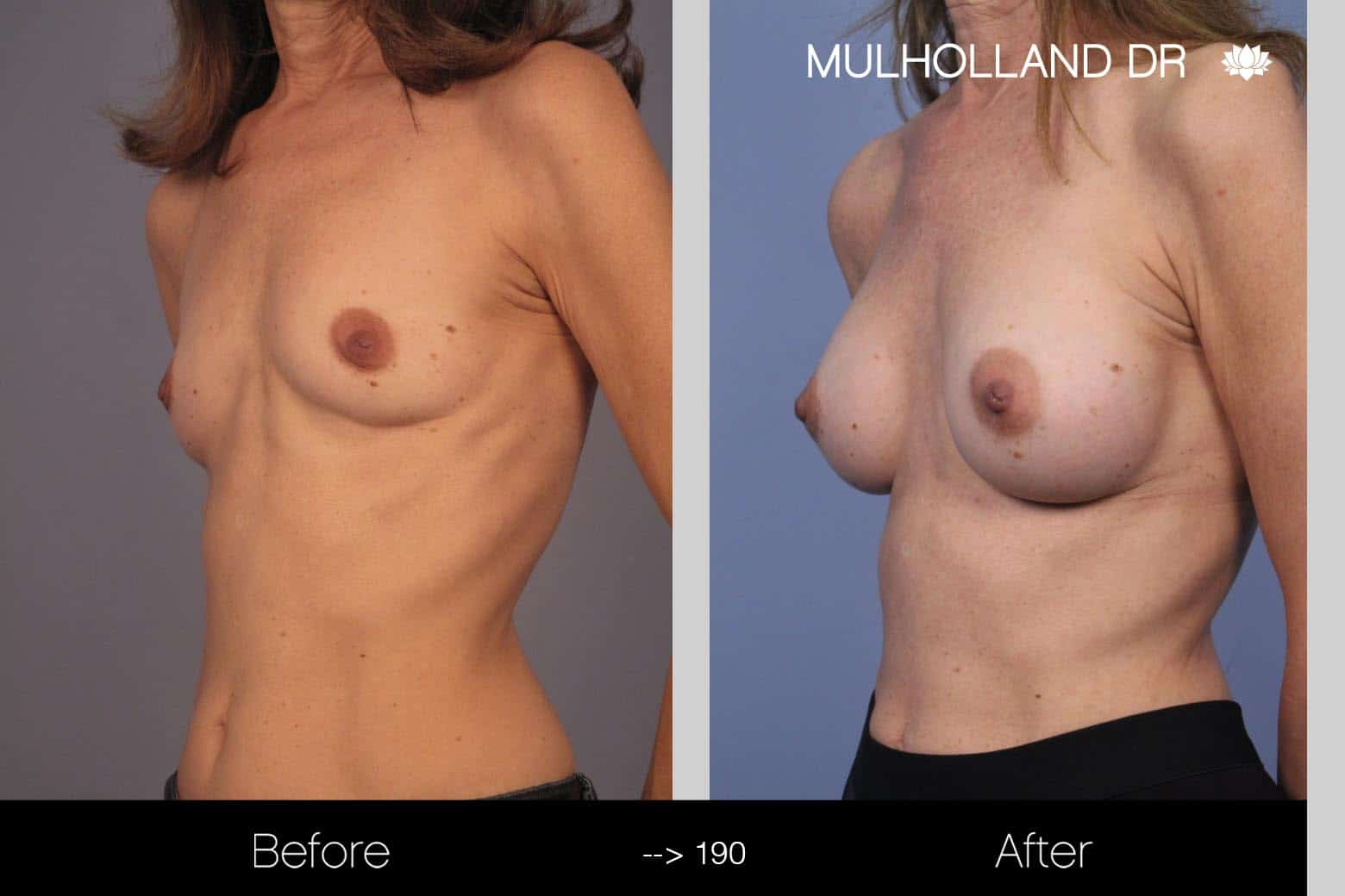 Fat Grafting Breast Augmentation - Before and After Gallery – Photo 17