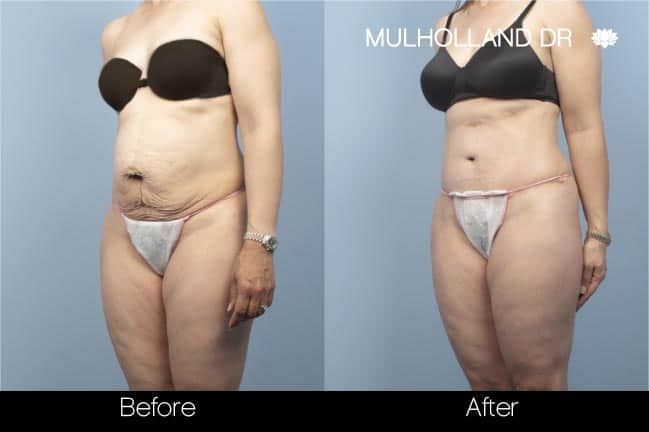 Mini Tummy Tuck - Before and After Gallery – Photo 18