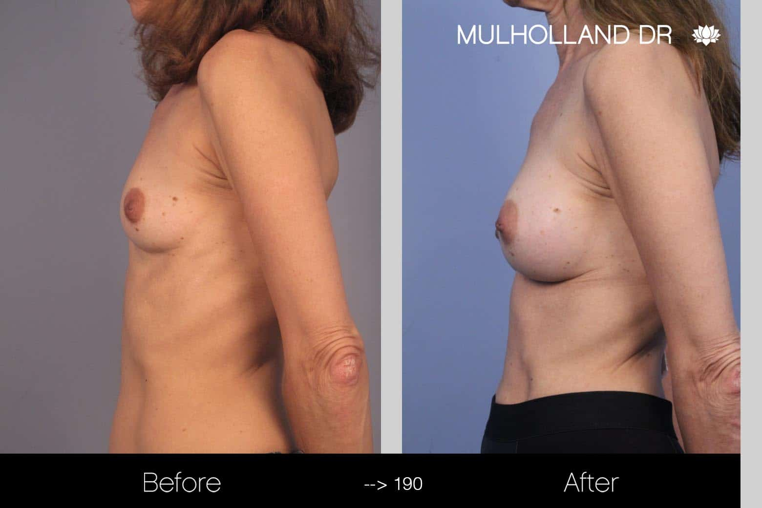 Fat Grafting Breast Augmentation - Before and After Gallery – Photo 18