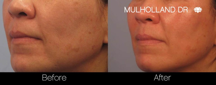 Acne Scar Treatments - Before and After Gallery – Photo 18