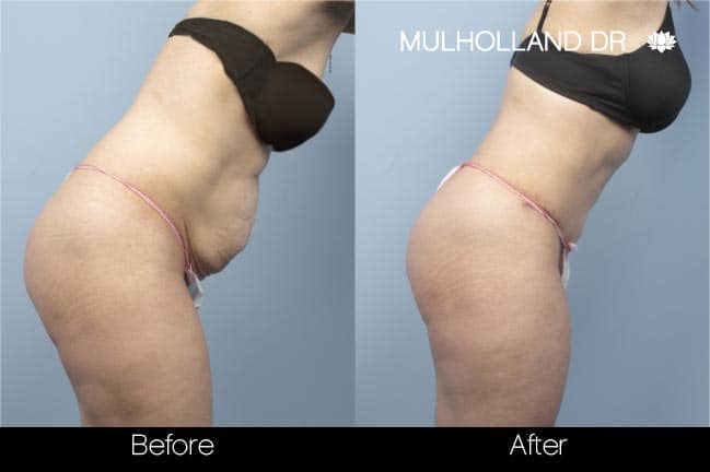 Mini Tummy Tuck - Before and After Gallery – Photo 19