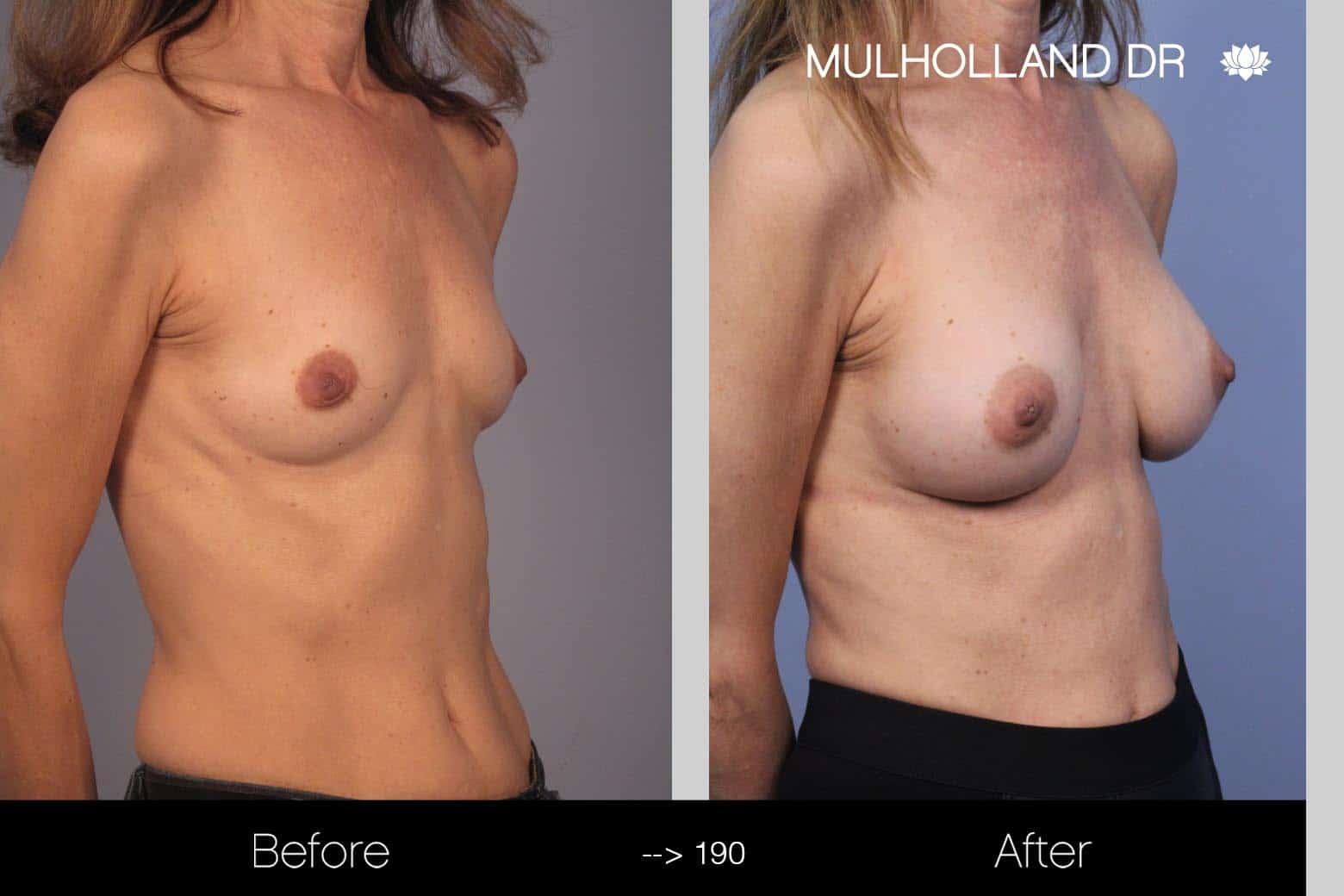 Fat Grafting Breast Augmentation - Before and After Gallery – Photo 19