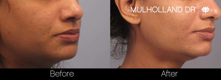Acne Scar Treatments - Before and After Gallery – Photo 19