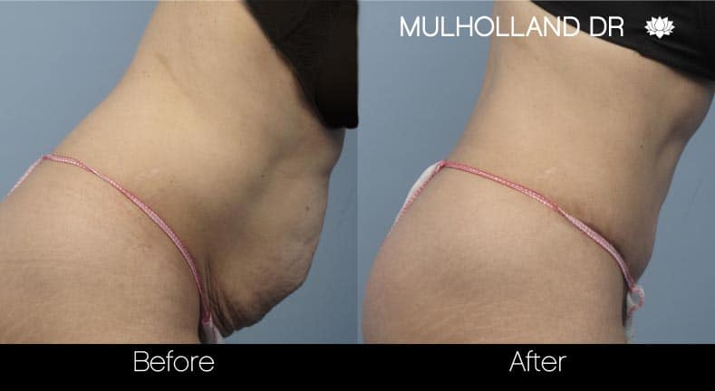 Mini Tummy Tuck - Before and After Gallery – Photo 20