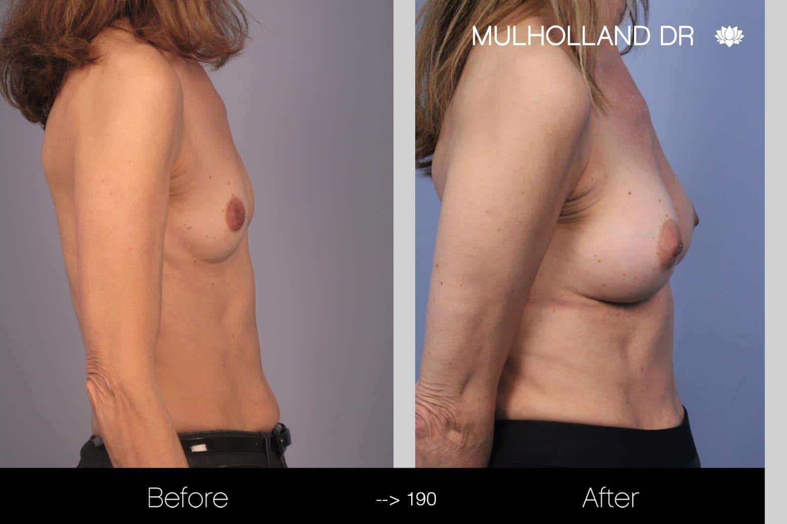 Fat Grafting Breast Augmentation - Before and After Gallery – Photo 20