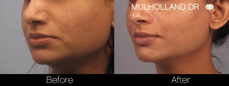 Acne Scar Treatments - Before and After Gallery – Photo 20