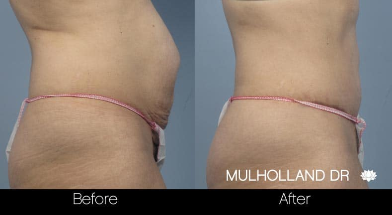 Mini Tummy Tuck - Before and After Gallery – Photo 21