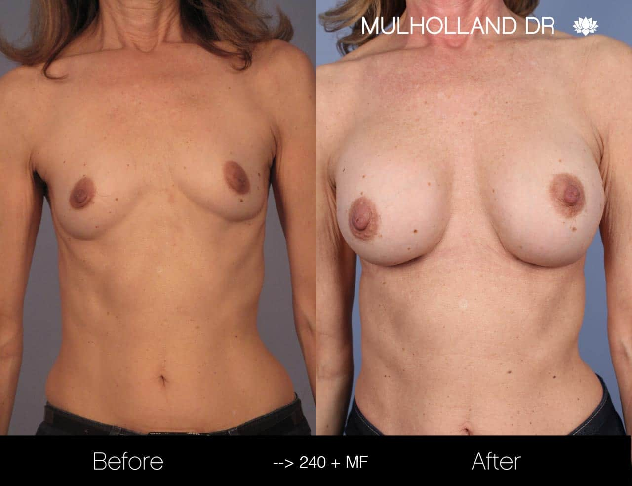 Fat Grafting Breast Augmentation - Before and After Gallery – Photo 21