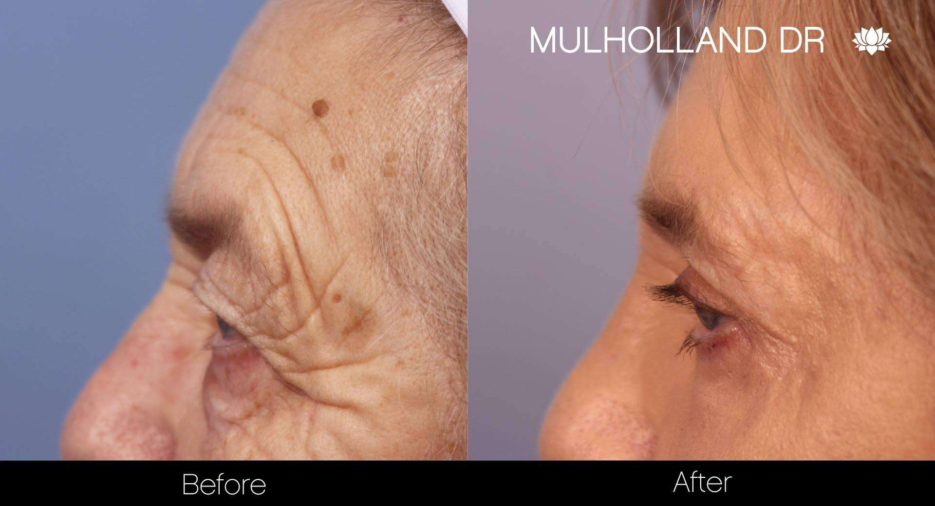 Fractional Erbium Laser - Before and After Gallery – Photo 28